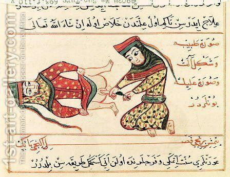 Ms Sup Turc 693 fol.110v Midwife operating on a hermaphrodite, 1466 by Charaf-ed-Din - Reproduction Oil Painting