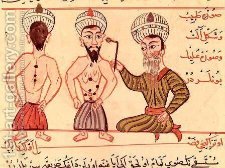 Ms Sup Turc 693 fol.35 Operation for Cauterisation, 1466 by Charaf-ed-Din - Reproduction Oil Painting