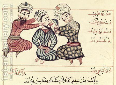 Ms Sup Turc 693 fol.76v Excision of a ranula from under the tongue, 1466 by Charaf-ed-Din - Reproduction Oil Painting