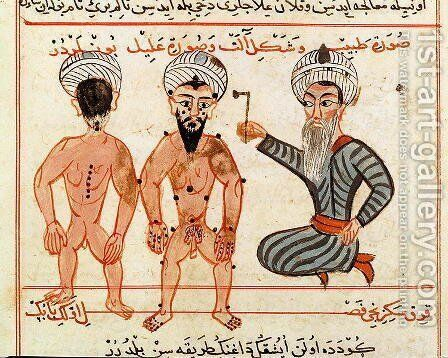 Ms Sup Turc 693 fol.46v Cauterisation of leprosy lesions, 1466 by Charaf-ed-Din - Reproduction Oil Painting