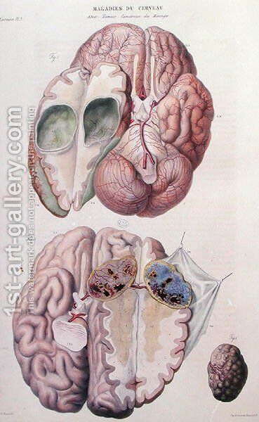 Cancerous tumours of the brain, from 'Anatomie Pathologique du Corps Humain' by Antoine Chazal - Reproduction Oil Painting