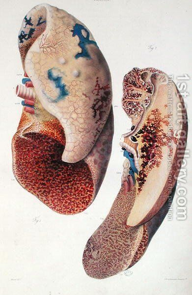 Pneumonia, from 'Anatomie Pathologique du Corps Humain' by Antoine Chazal - Reproduction Oil Painting