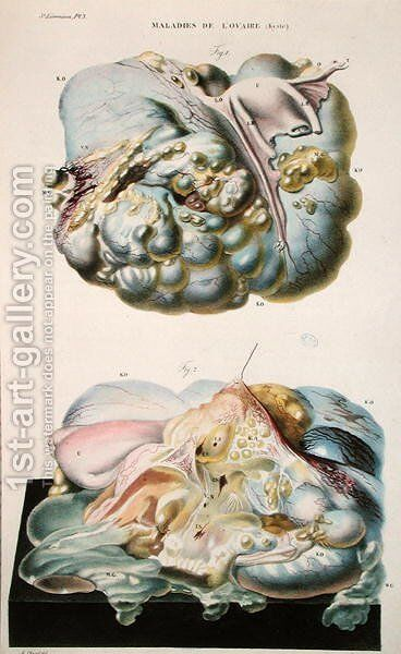 Diseases of the Ovaries, from 'Anatomie Pathologique du Corps Humain' by Antoine Chazal - Reproduction Oil Painting