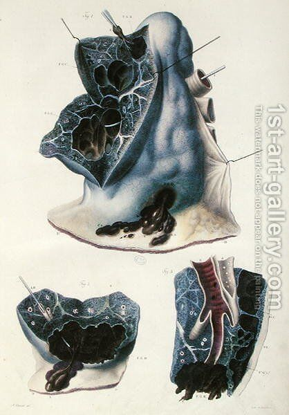 Diseases of the lungs, from 'Anatomie Pathologique du Corps Humain' by Antoine Chazal - Reproduction Oil Painting