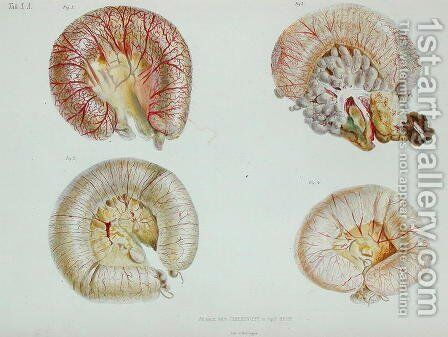 The external surface of the intestines infected with cholera, from 'Anatomie Pathologique du Cholera Morbus', by Nikolai Ivanovich Pirogov 1810-81 published in St. Petersburg, 1849 by Anonymous Artist - Reproduction Oil Painting