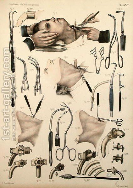 Tracheotomy operation, plate from Traite Complet de lAnatomie de lHomme by Jean-Baptiste Marc Bourgery 1797-1849 1866-67 2 by E. Pochet - Reproduction Oil Painting