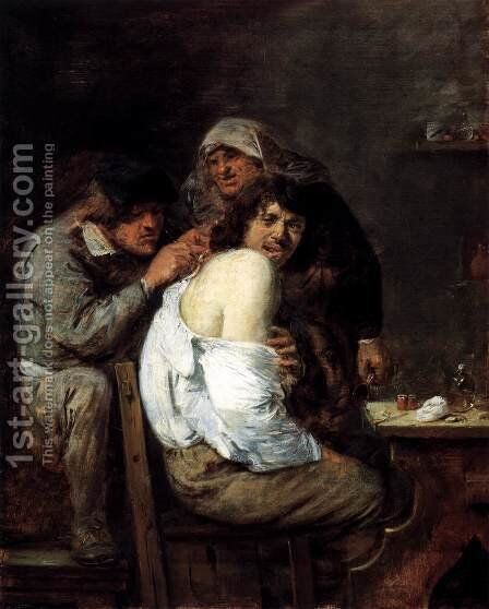The Back Operation by Adriaen Brouwer - Reproduction Oil Painting
